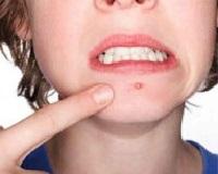 akne-prichiny-i-lechenie