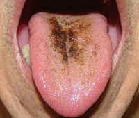 коричневый налет на языке у взрослых