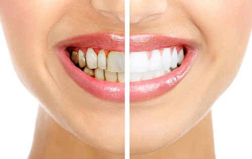 как избавиться от зубного налета