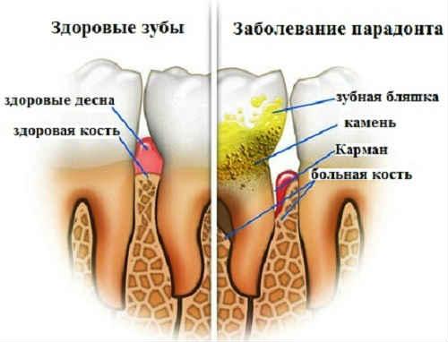 зубной налет причины возникновения