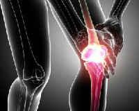 артроз и артрит коленного сустава