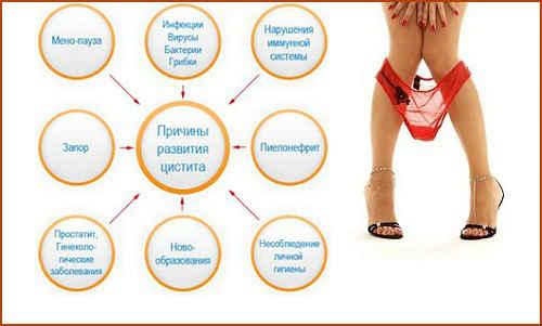 Первые признаки цистита у женщин что делать и как лечить