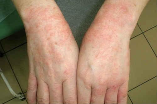 аллергия на солнце препараты