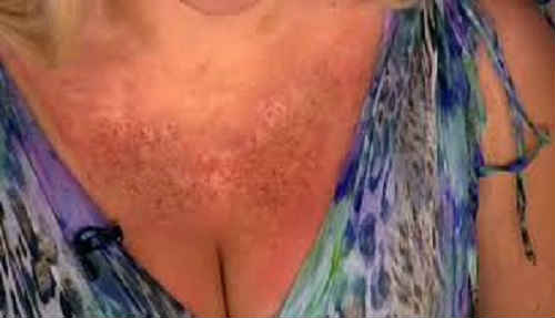симптомы и признаки солнечной аллергии