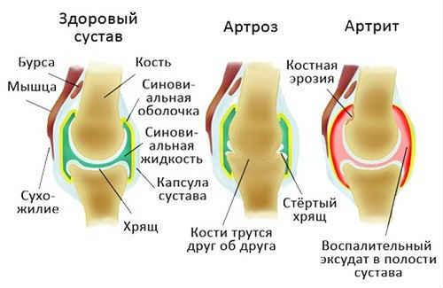 артроз и артрит в чем разница