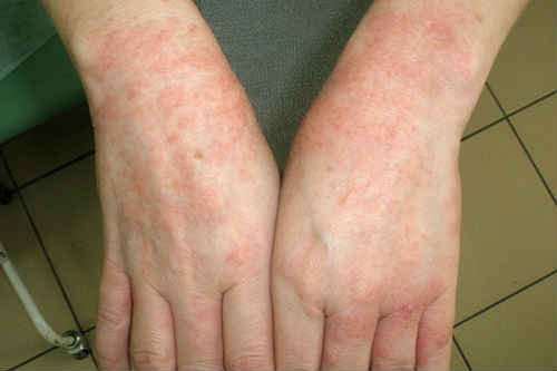 как выглядит аллергия и как ее лечить